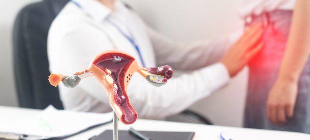diventare-mamma-nonostante-il-fibroma-uterino