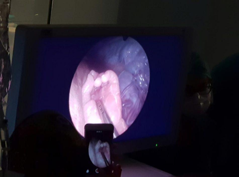 spina-bifida-curata-in-utero-due-rivoluzionari-interventi-eseguiti-a-milano