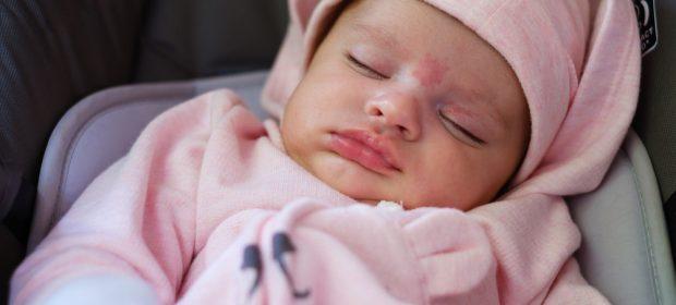 macchie-sulla-pelle-del-neonato-colpa-delle-voglie
