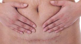 recupero-dopo-parto-cesareo-tempi-modalita