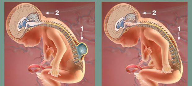 spina-bifida-corretta-in-utero-il-neonato-e-nato-sano-primo-caso-in-europa