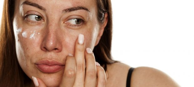 come-prevenire-maschera-gravidica