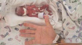 nasce-in-usa-bimbo-di-23-settimane