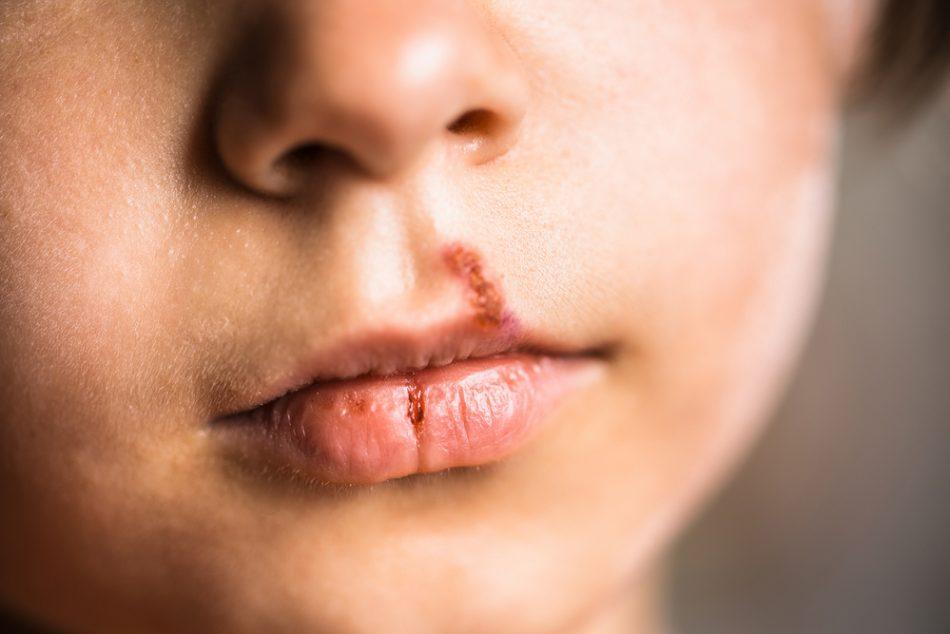 herpes-labiale-bambini