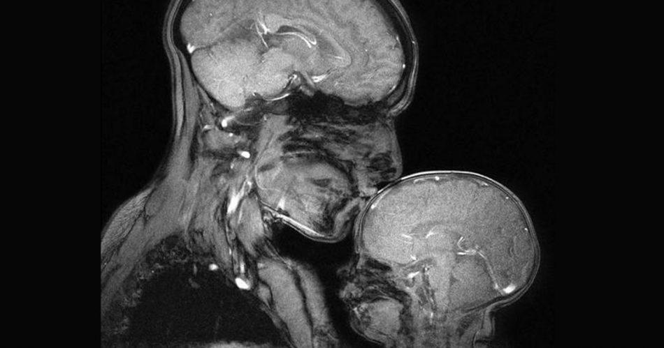 lamore-tra-madre-e-figlio-visto-attraverso-una-risonanza-magnetica