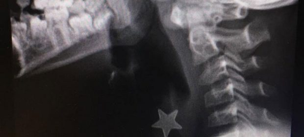 inala-una-stellina-di-metallo-che-si-blocca-in-trachea-intervento-al-niguarda-di-milano