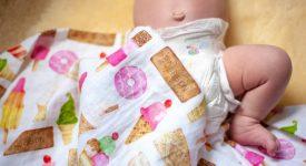 ernia-ombelicale-del-neonato