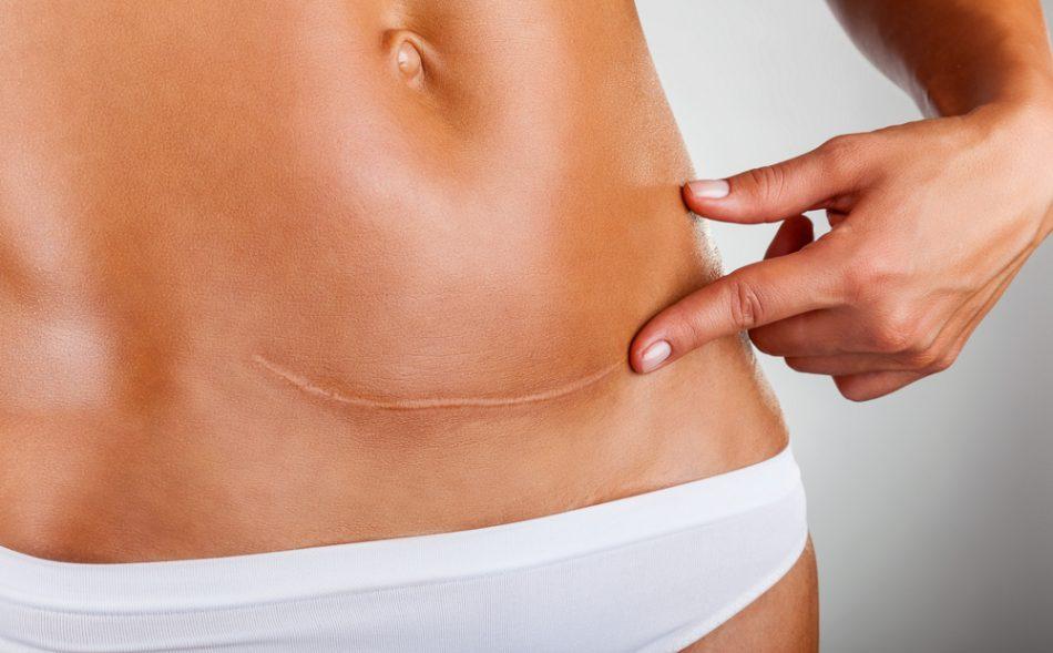 5-cose-da-sapere-sul-post-parto-cesareo